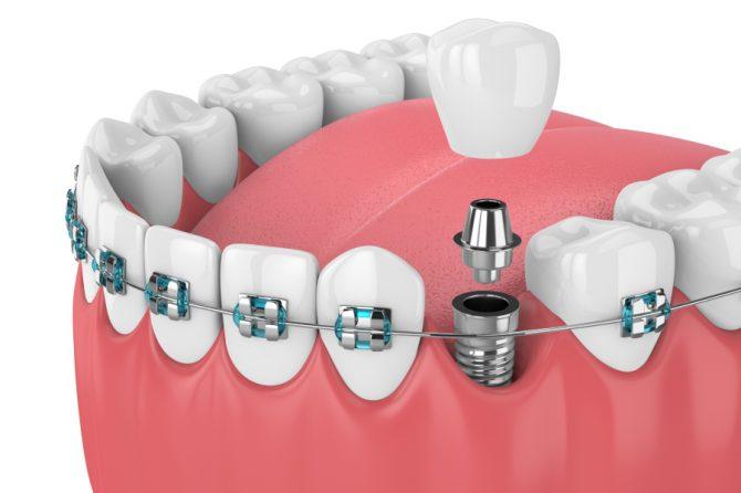 Czym są korony protetyczne zębów?