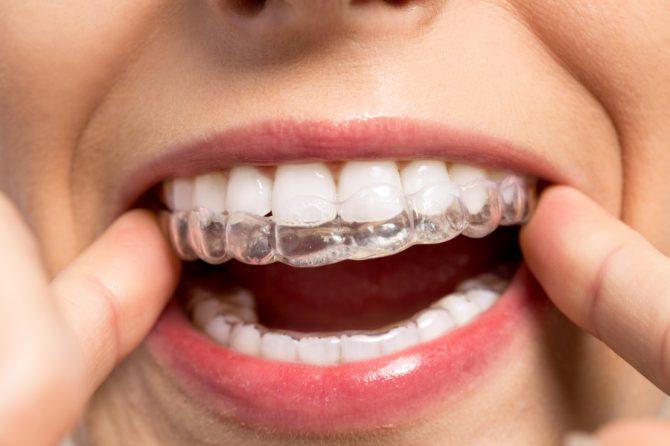 Licówki – rozwiązanie problemu krzywych zębów